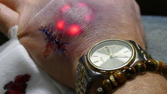 Através de propagandas que tentam mostrar como os microchips implantados na pele trazem vantagens, a procura espontânea aumentou. Foto: Ilustrativa