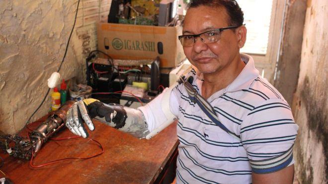 José Arivelton Ribeiro teve o braço direito amputado e desenvolveu habilidade com a mão esquerda para produzir próteses